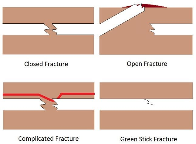 Fractures Broken Bones And Dislocations First Aid For Pets